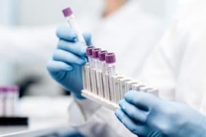 製薬大手がIBMのブロックチェーンを試験運用する理由